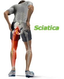 About Sciatica