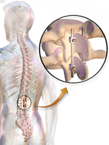 Spine Fusion Surgery
