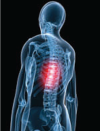 Thoracic Spinal Fusion
