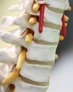 Risks of Minimally Invasive Spine Surgery